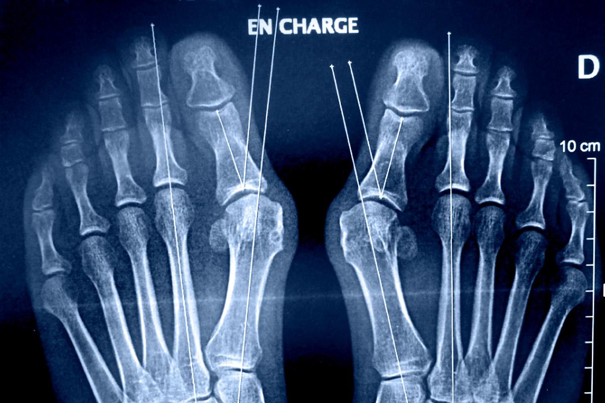centre-du-pied-marseille-radiologie